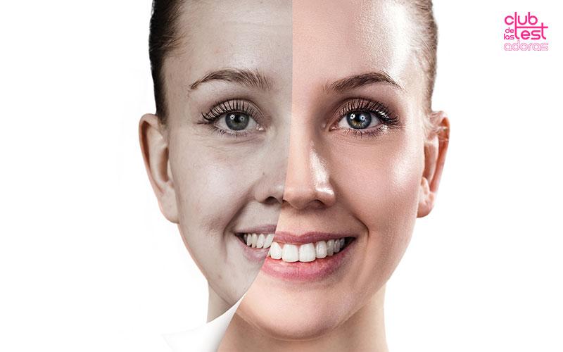 causas de la piel apagada