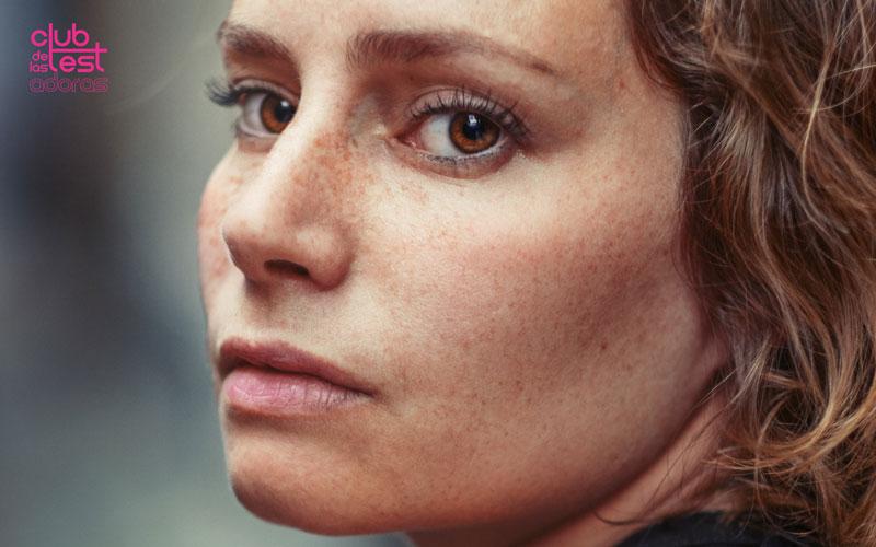 cómo evitar la hiperpigmentación